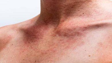 Photo of الأعراض المصاحبة لمرض الصدفية